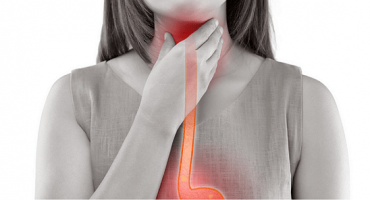 Esophagitis and Gastric Reflux